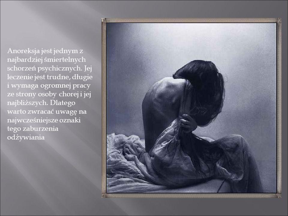Anoreksja jest jednym z najbardziej śmiertelnych schorzeń psychicznych