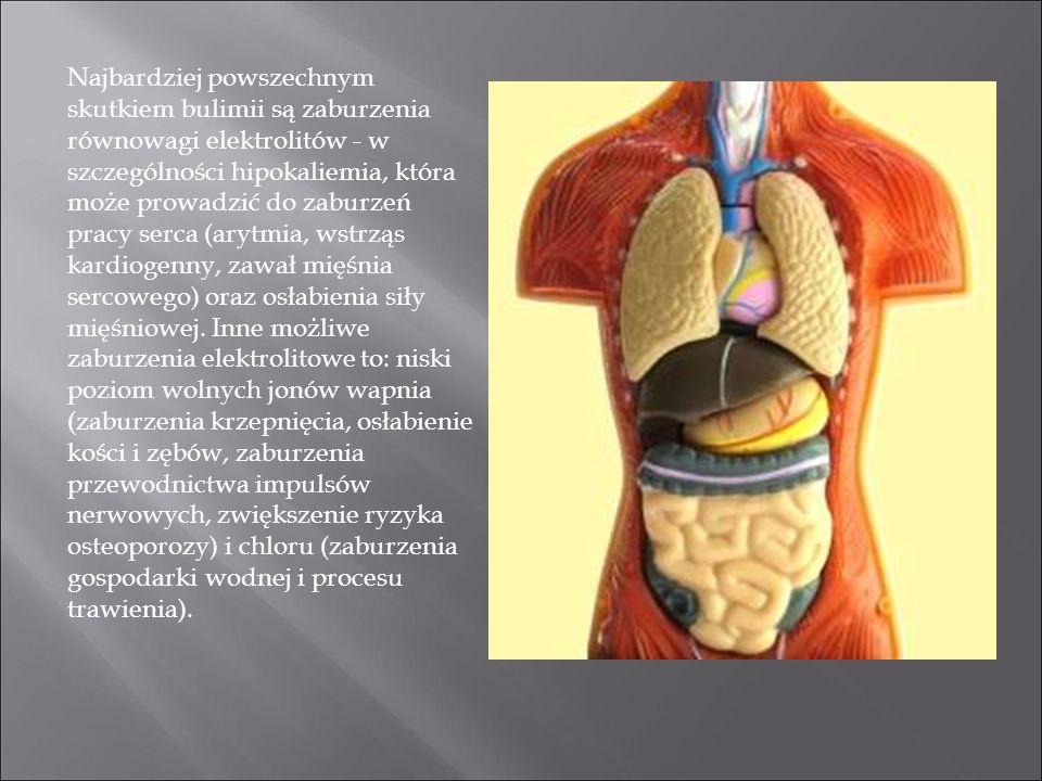 Najbardziej powszechnym skutkiem bulimii są zaburzenia równowagi elektrolitów - w szczególności hipokaliemia, która może prowadzić do zaburzeń pracy serca (arytmia, wstrząs kardiogenny, zawał mięśnia sercowego) oraz osłabienia siły mięśniowej.