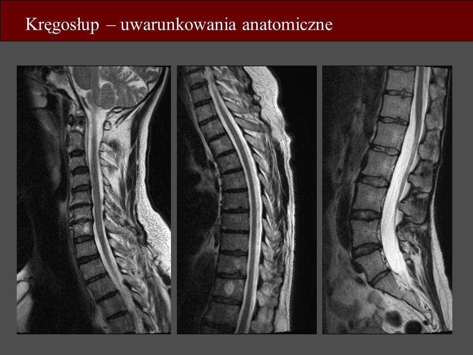 Kręgosłup – uwarunkowania anatomiczne