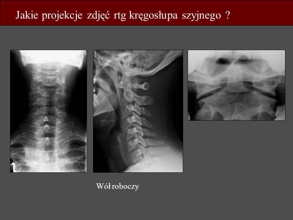 Jakie projekcje zdjęć rtg kręgosłupa szyjnego