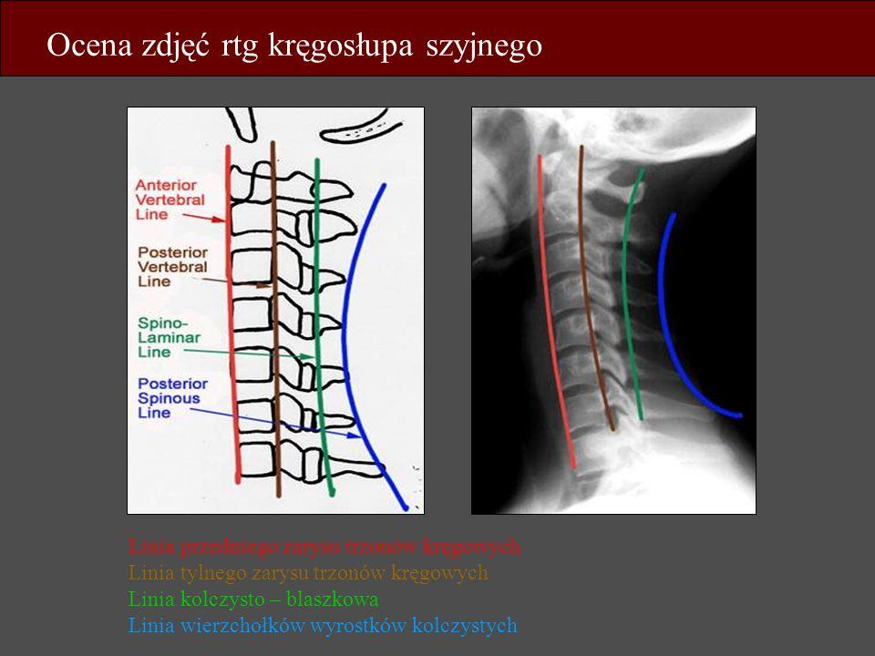 Ocena zdjęć rtg kręgosłupa szyjnego