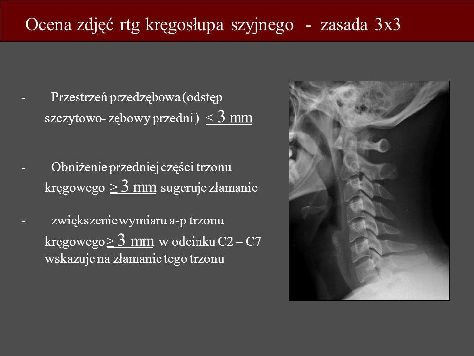 Ocena zdjęć rtg kręgosłupa szyjnego - zasada 3x3