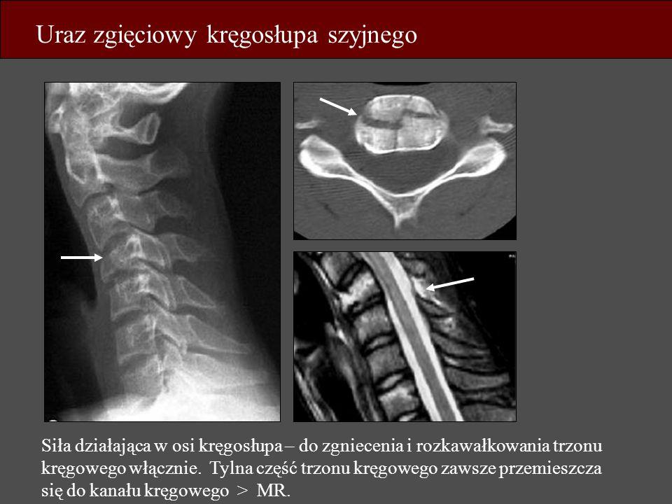 Uraz zgięciowy kręgosłupa szyjnego