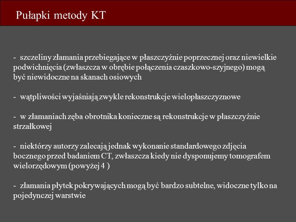 Pułapki metody KT