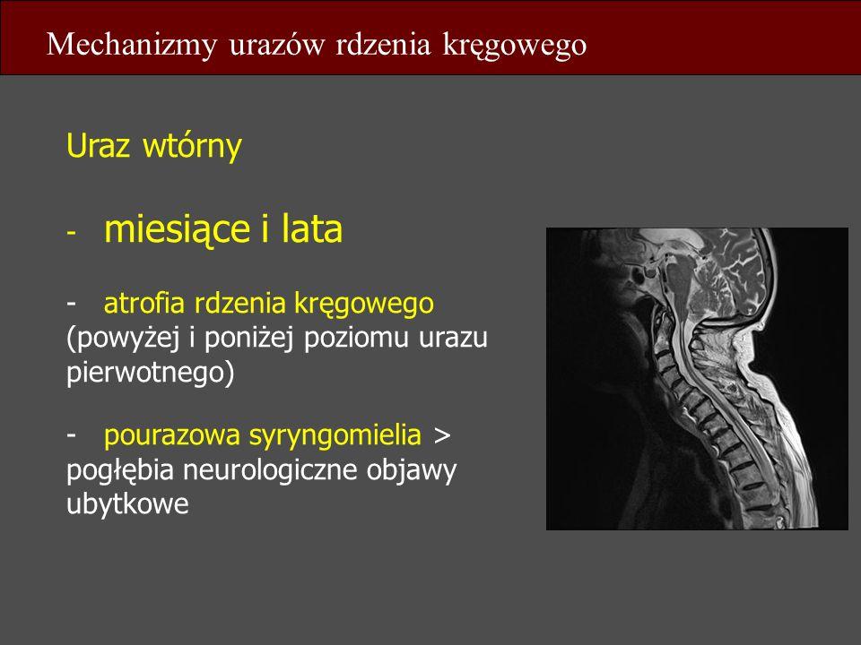 Mechanizmy urazów rdzenia kręgowego
