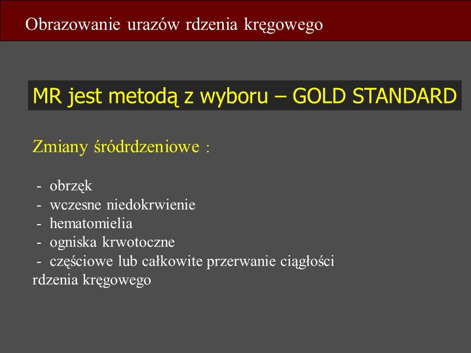MR jest metodą z wyboru – GOLD STANDARD