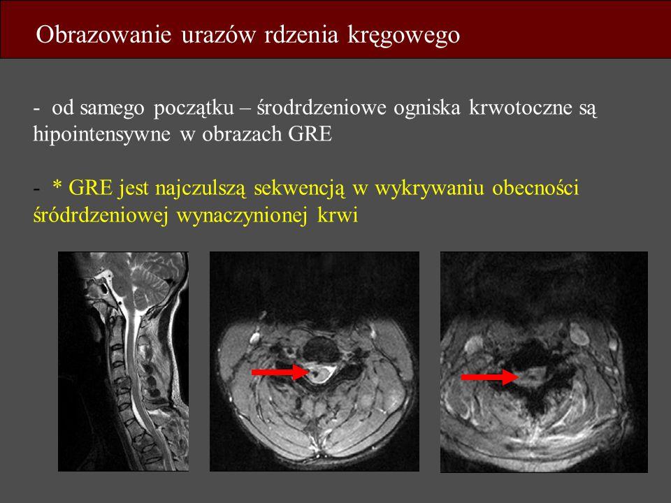 Obrazowanie urazów rdzenia kręgowego