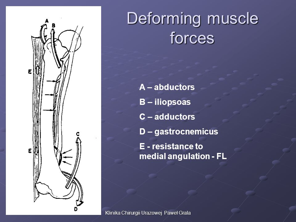 Deforming muscle forces