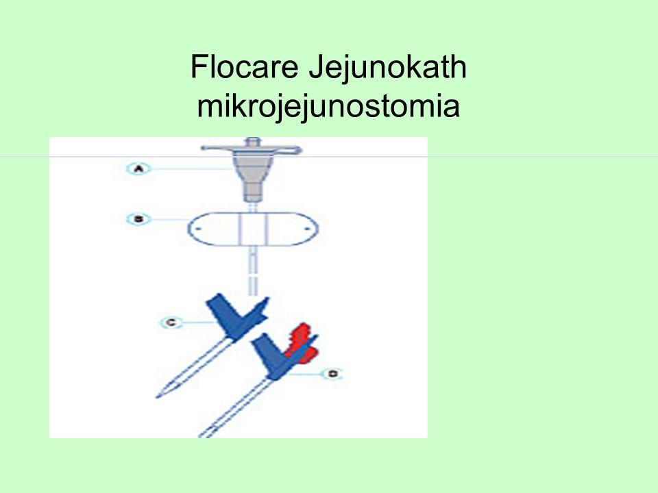 Flocare Jejunokath mikrojejunostomia