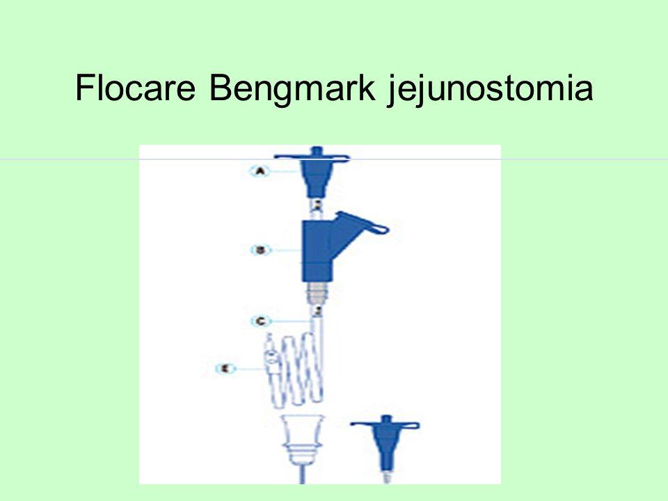 Flocare Bengmark jejunostomia