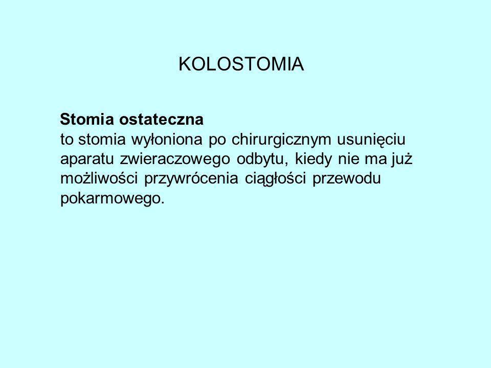 KOLOSTOMIA