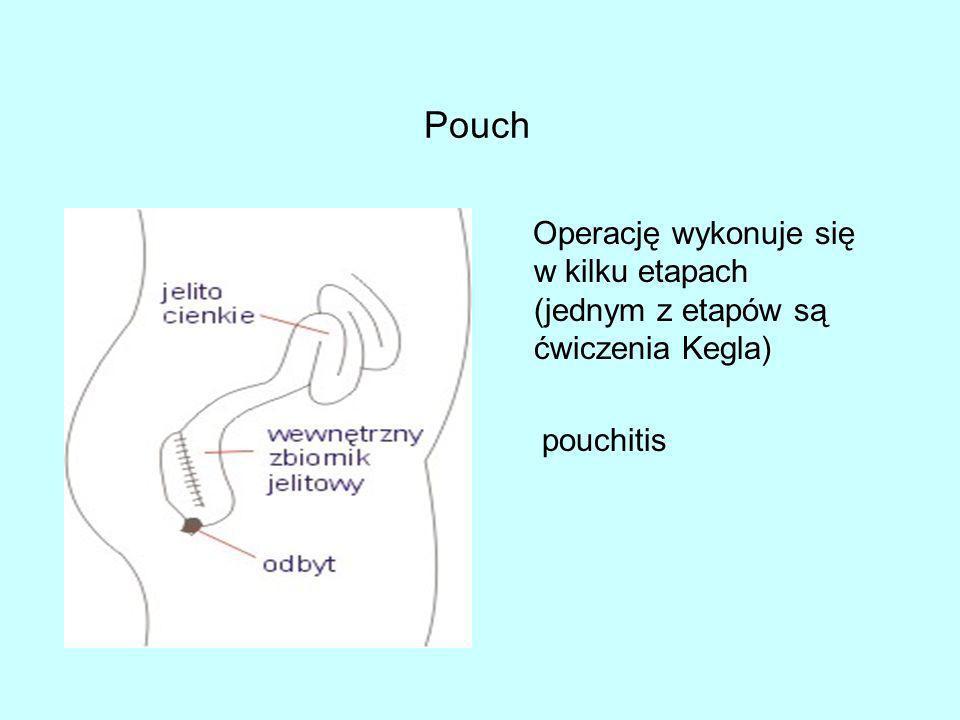 Pouch Operację wykonuje się w kilku etapach (jednym z etapów są ćwiczenia Kegla) pouchitis