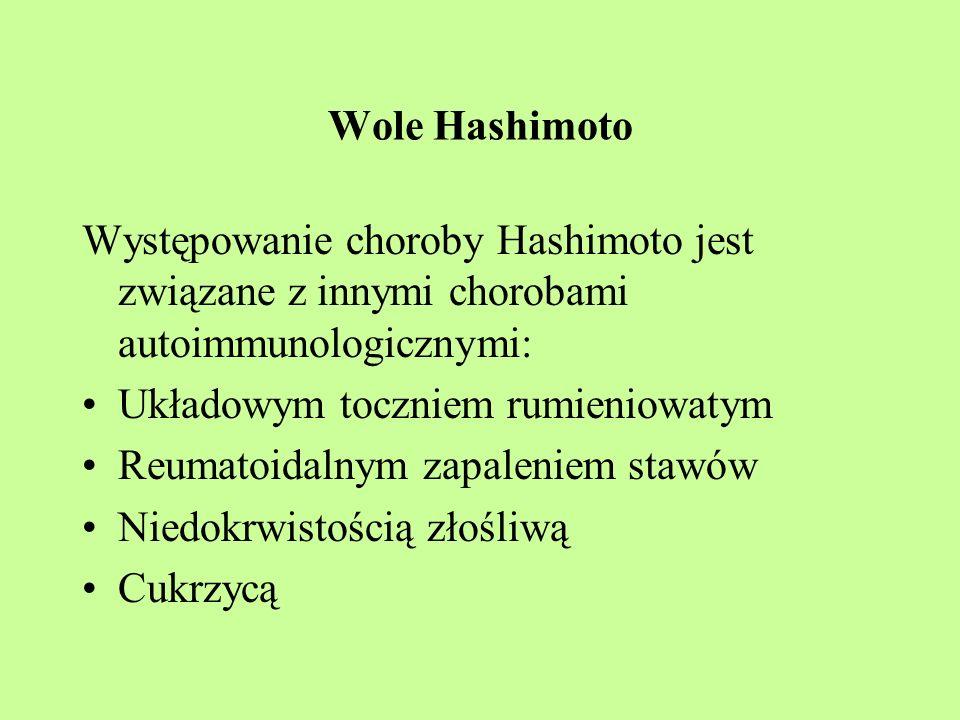 Wole Hashimoto Występowanie choroby Hashimoto jest związane z innymi chorobami autoimmunologicznymi: