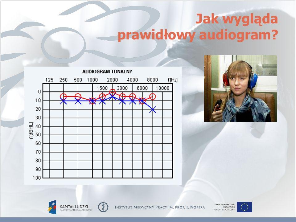 Jak wygląda prawidłowy audiogram