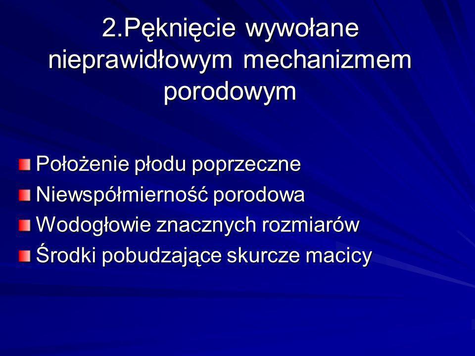 2.Pęknięcie wywołane nieprawidłowym mechanizmem porodowym