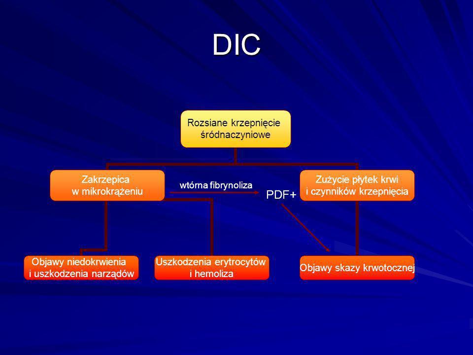 DIC wtórna fibrynoliza PDF+