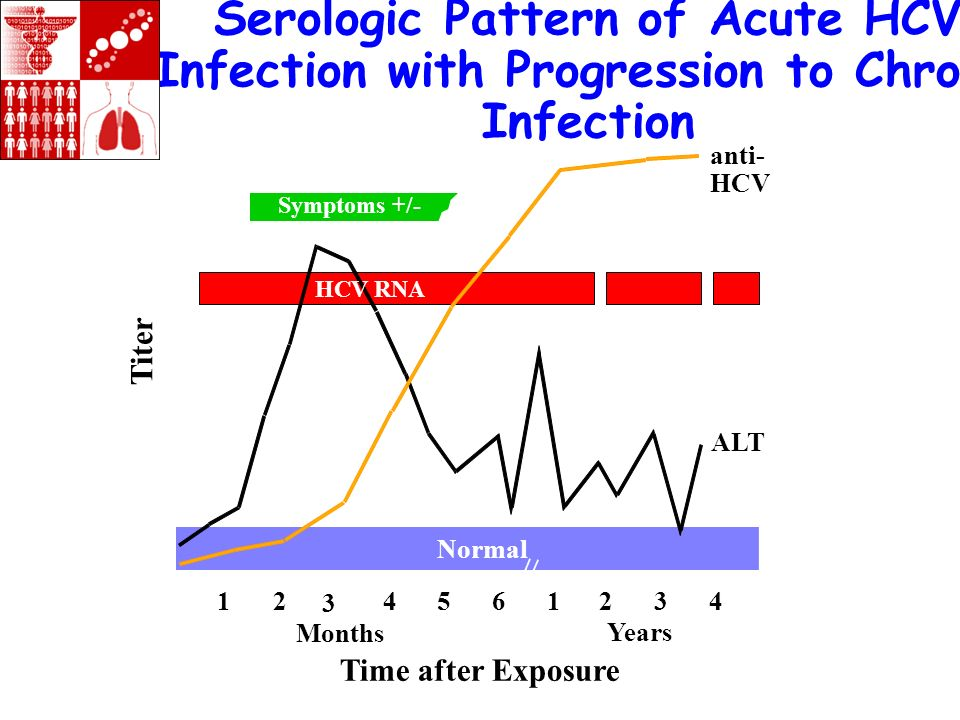 Serologic Pattern of Acute HCV Infection with Progression to Chronic Infection