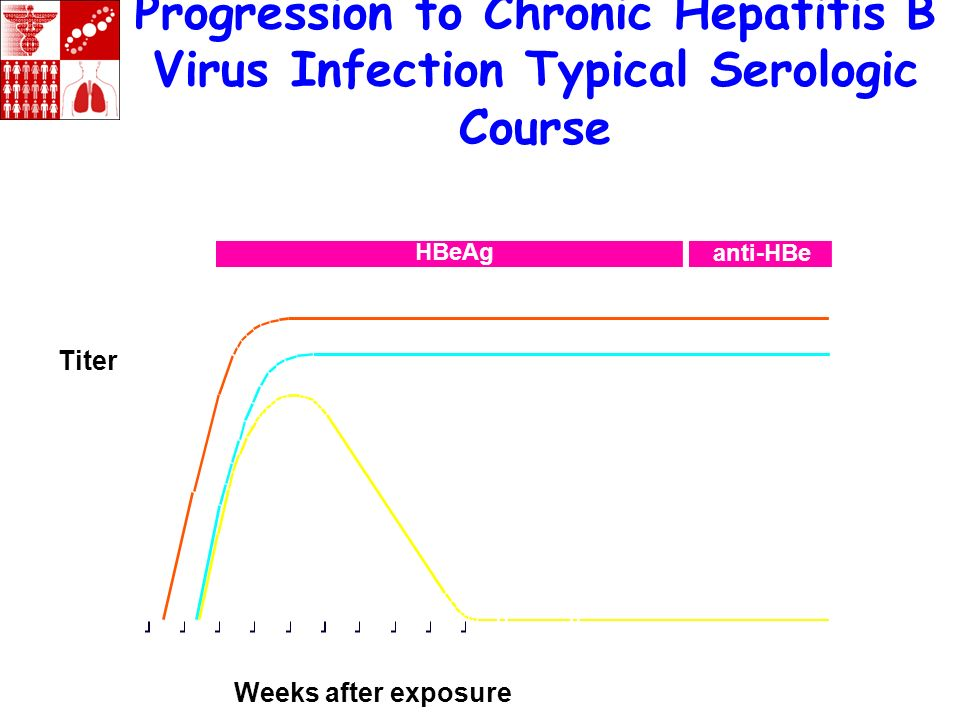 Progression to Chronic Hepatitis B Virus Infection Typical Serologic Course