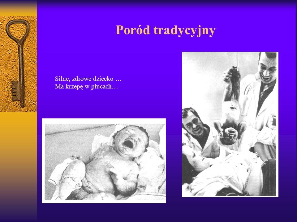 Poród tradycyjny Silne, zdrowe dziecko … Ma krzepę w płucach…