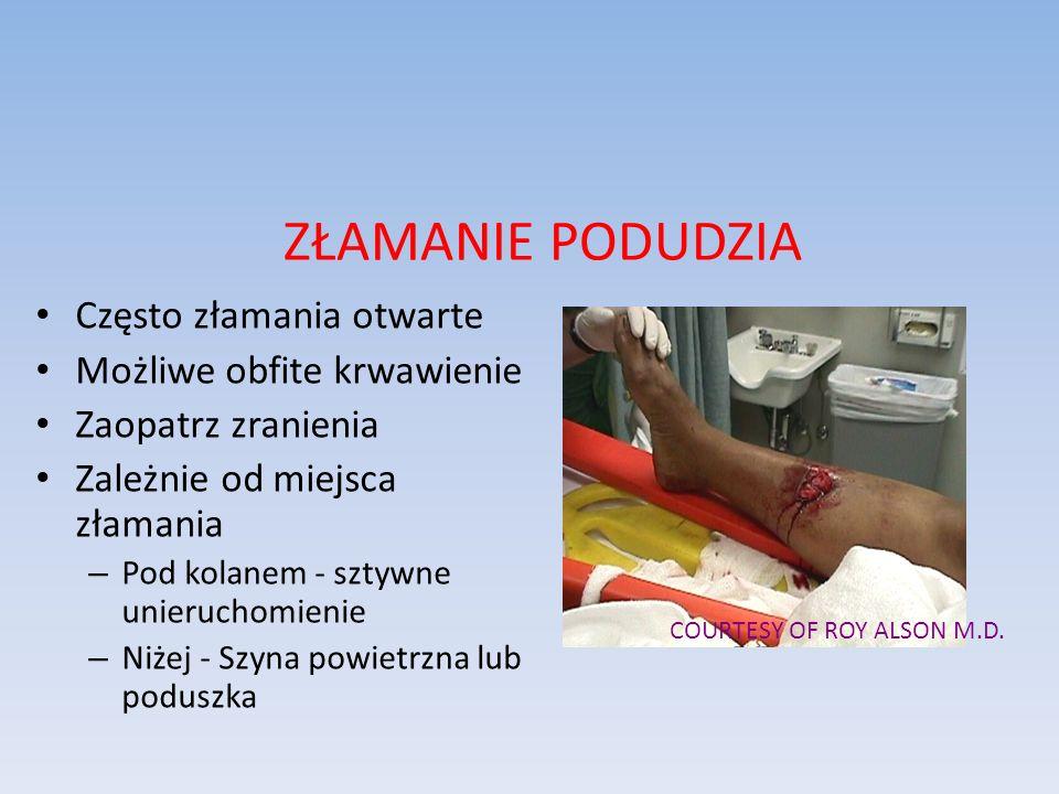 ZŁAMANIE PODUDZIA Często złamania otwarte Możliwe obfite krwawienie