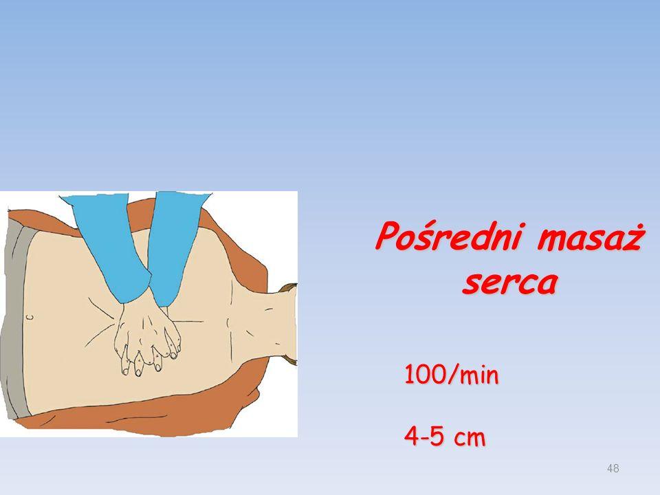 Pośredni masaż serca 100/min 4-5 cm