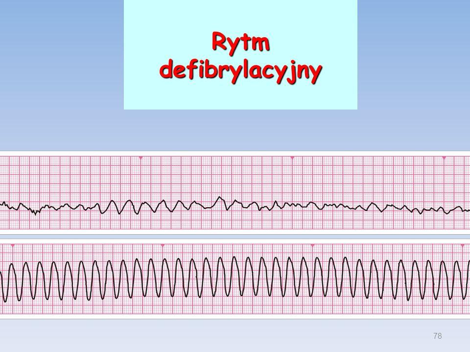 Rytm defibrylacyjny