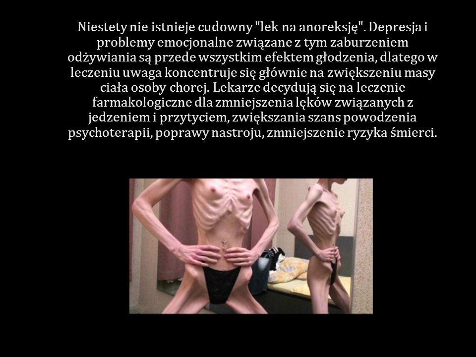 Niestety nie istnieje cudowny lek na anoreksję