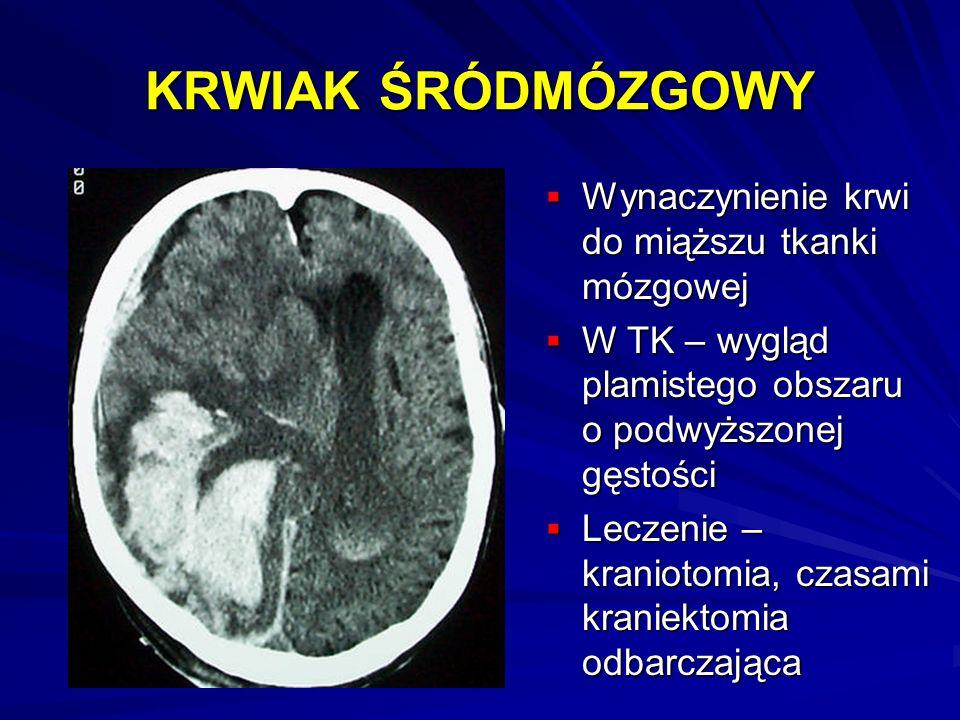 KRWIAK ŚRÓDMÓZGOWY Wynaczynienie krwi do miąższu tkanki mózgowej