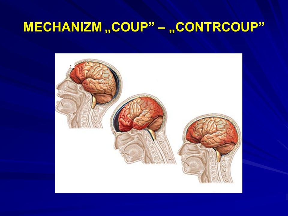 "MECHANIZM ""COUP – ""CONTRCOUP"