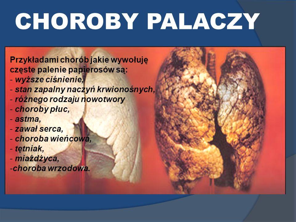CHOROBY PALACZY Przykładami chorób jakie wywołuję