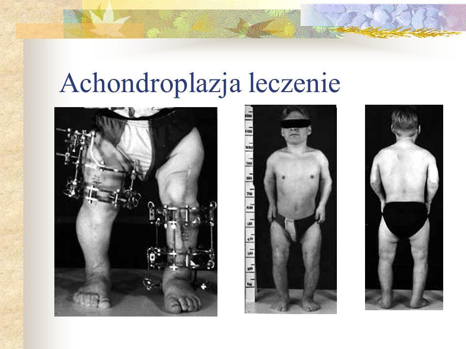 Achondroplazja leczenie
