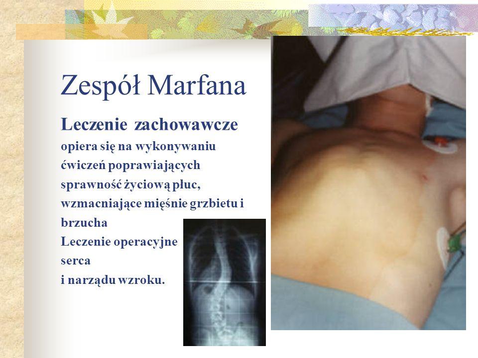 Zespół Marfana Leczenie zachowawcze opiera się na wykonywaniu
