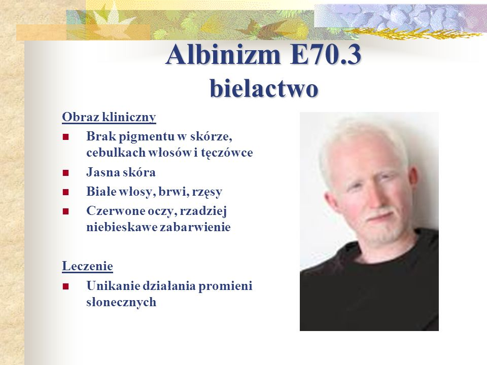 Albinizm E70.3 bielactwo Obraz kliniczny