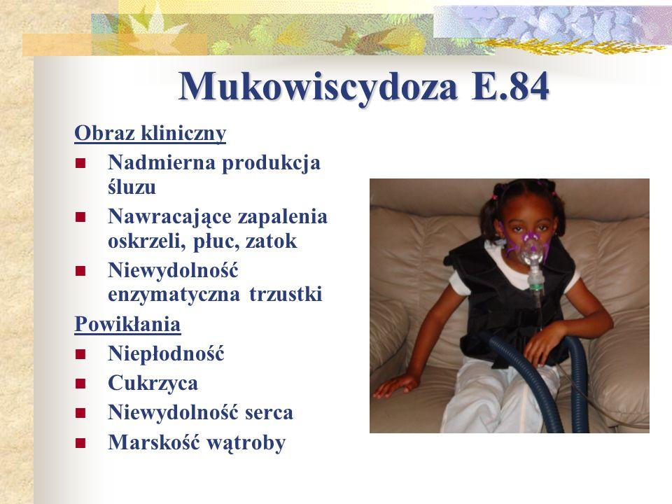 Mukowiscydoza E.84 Obraz kliniczny Nadmierna produkcja śluzu