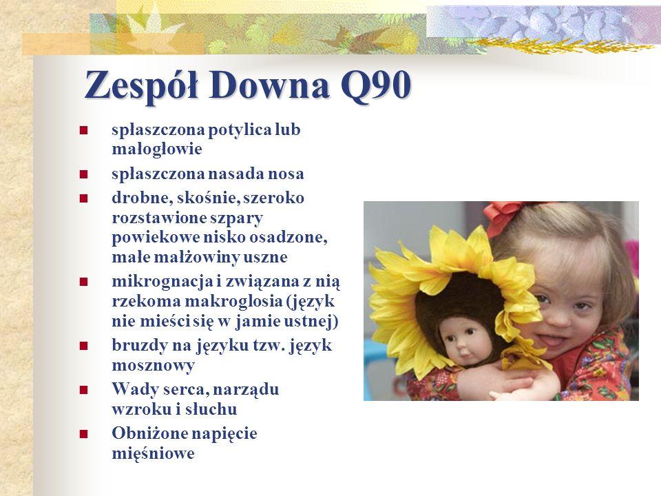 Zespół Downa Q90 spłaszczona potylica lub małogłowie