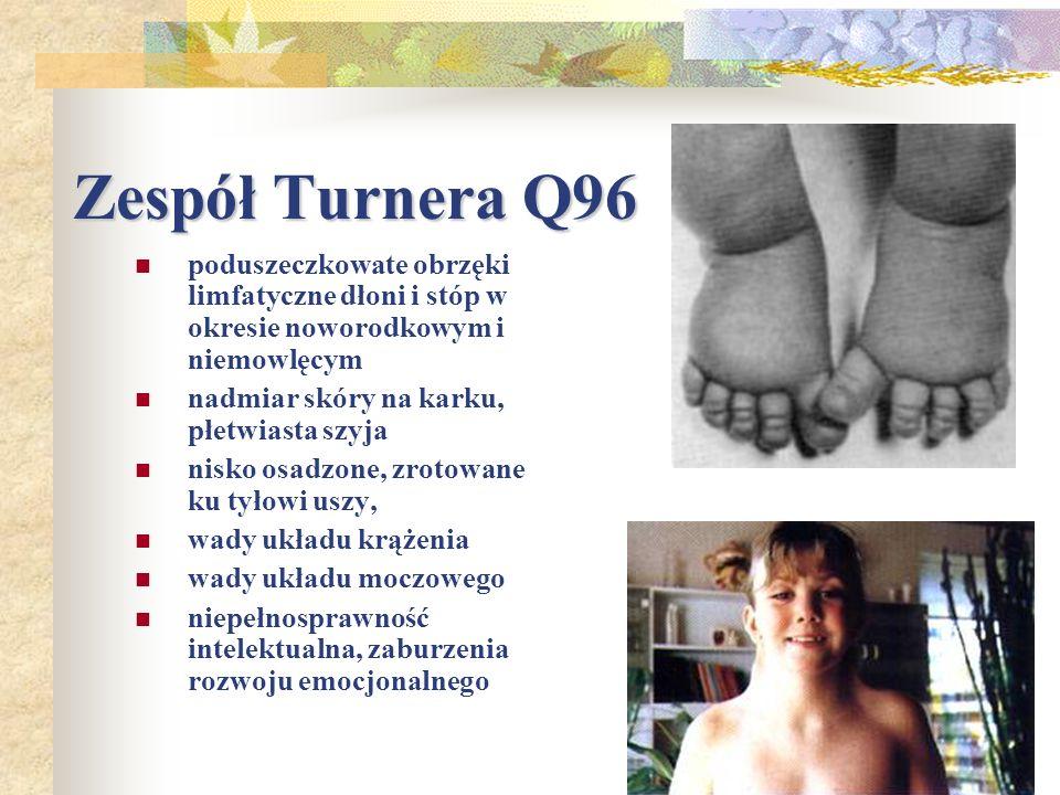 Zespół Turnera Q96 poduszeczkowate obrzęki limfatyczne dłoni i stóp w okresie noworodkowym i niemowlęcym.