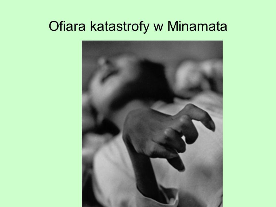 Ofiara katastrofy w Minamata
