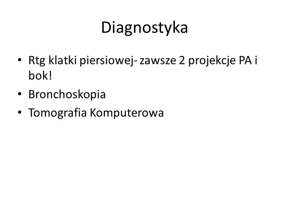 Diagnostyka Rtg klatki piersiowej- zawsze 2 projekcje PA i bok!