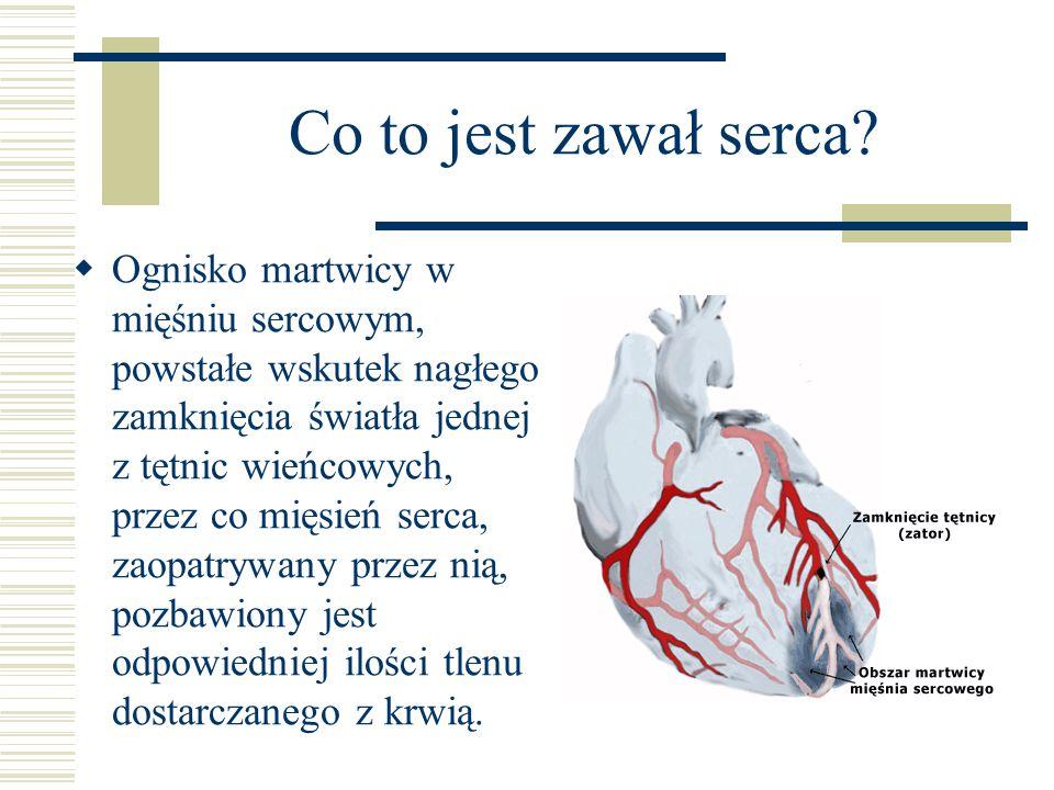 Co to jest zawał serca