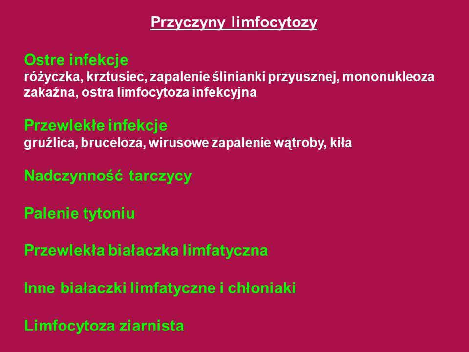 Przyczyny limfocytozy