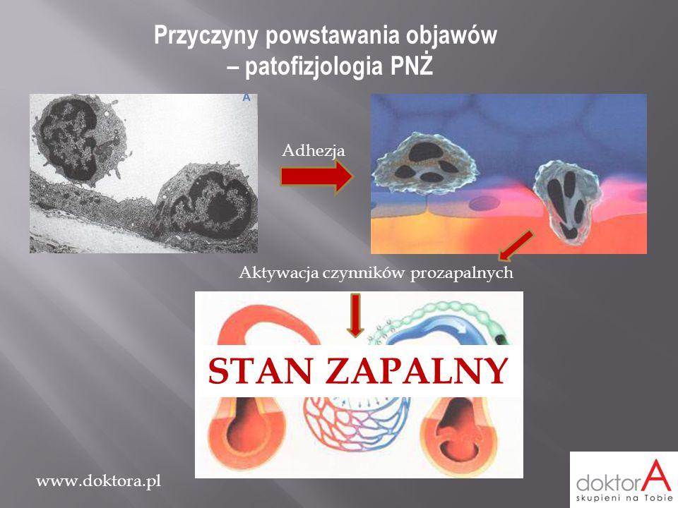STAN ZAPALNY Przyczyny powstawania objawów – patofizjologia PNŻ