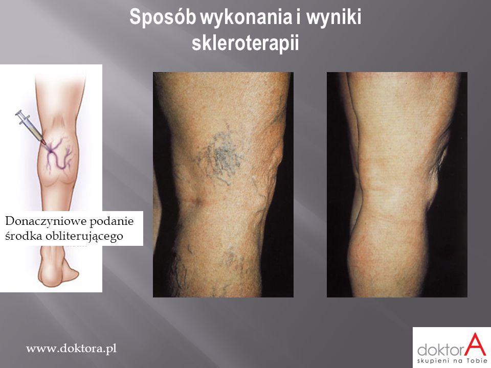 Sposób wykonania i wyniki skleroterapii
