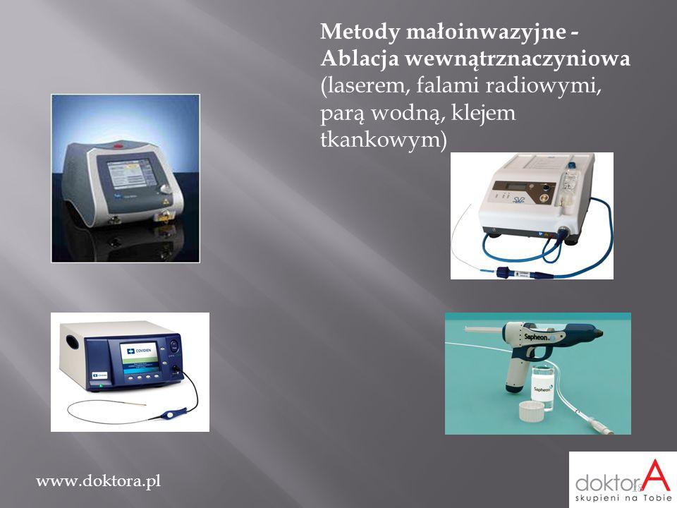 Metody małoinwazyjne - Ablacja wewnątrznaczyniowa (laserem, falami radiowymi, parą wodną, klejem tkankowym)