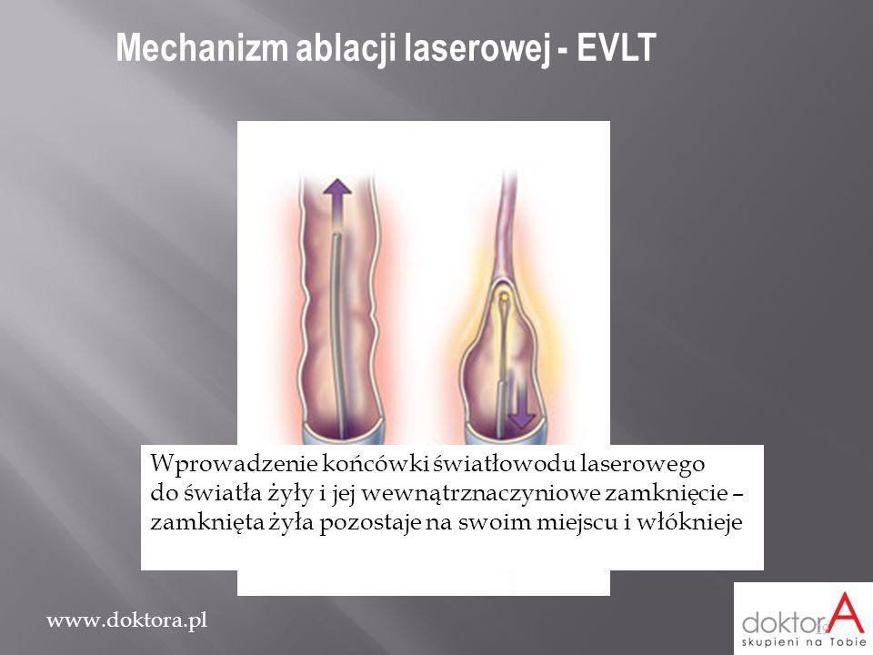 Mechanizm ablacji laserowej - EVLT