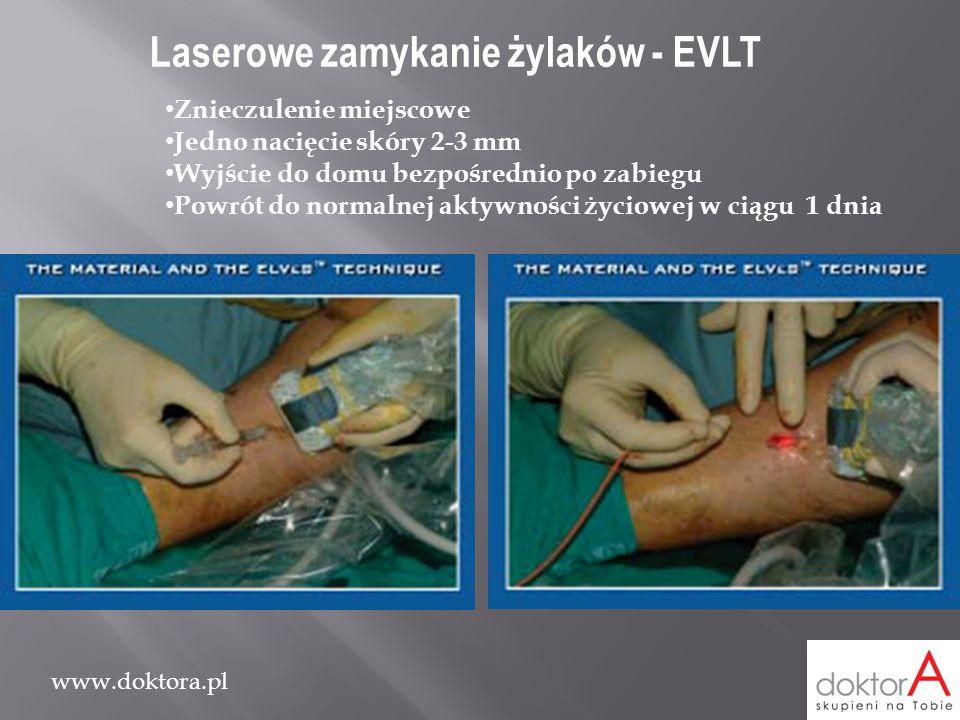 Laserowe zamykanie żylaków - EVLT