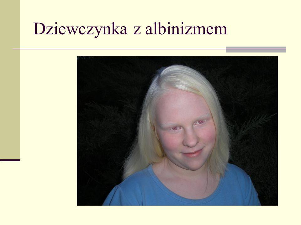 Dziewczynka z albinizmem