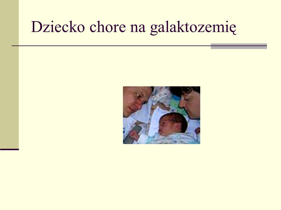 Dziecko chore na galaktozemię