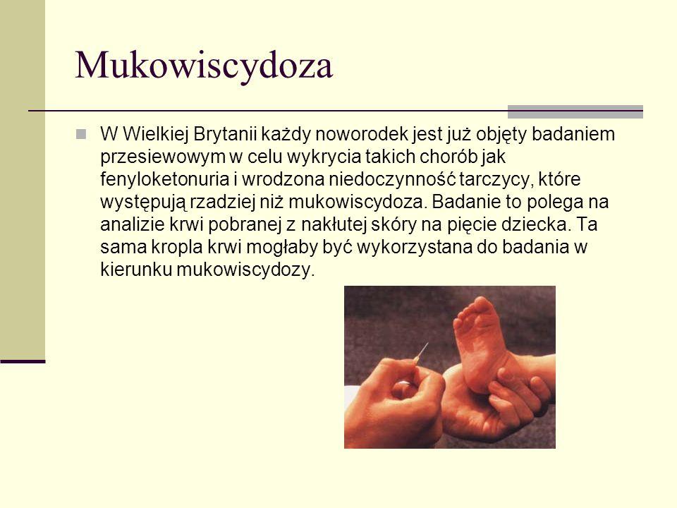 Mukowiscydoza