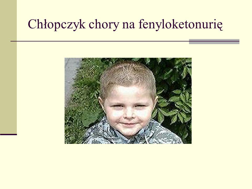 Chłopczyk chory na fenyloketonurię