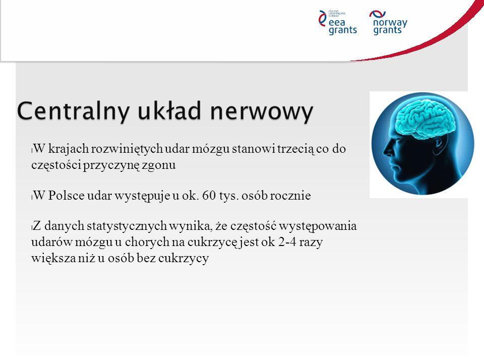 W krajach rozwiniętych udar mózgu stanowi trzecią co do częstości przyczynę zgonu